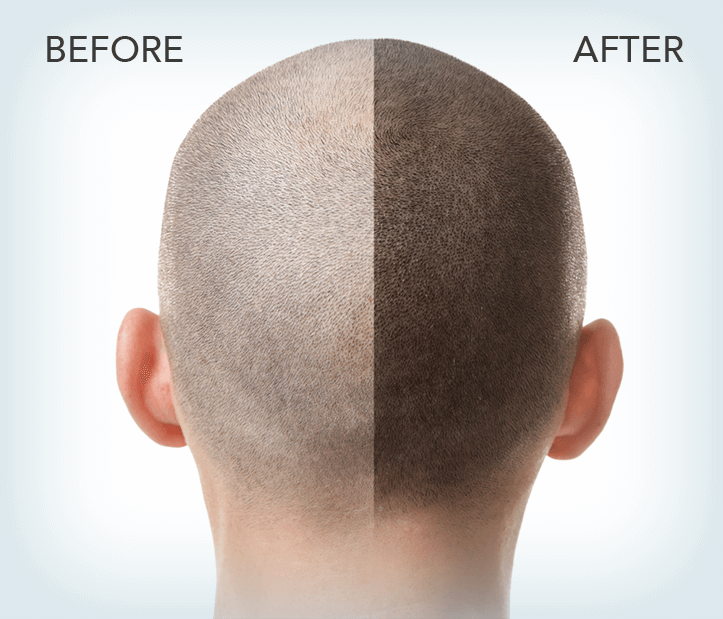 FUE is the answer to Hair loss in Modern Day