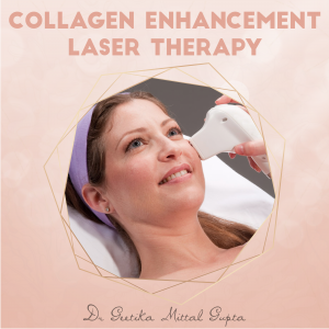 Collagen Enhancement Laser Therapy