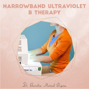 Narrowband Ultraviolet B Therapy