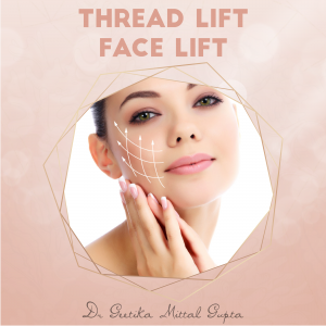 Thread Lift - Face Lift