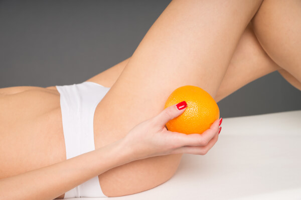 Cellulite Removal In Delhi